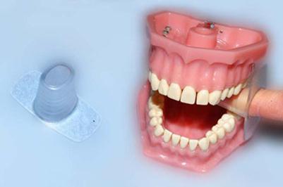 Oralno zdravlje pacijenata sa cerebralnom paralizom i strategije za njegovo o...