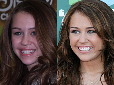 20 PHOTOS OF HOLLYWOOD STARS BEFORE AND AFTER DENTAL TREATMENTS