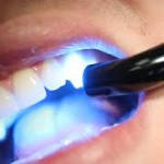 Bolesti zuba i endodoncija