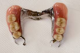 Impact of periodontal maintenance on tooth survival in patients with removable partial dentures