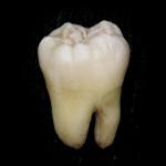 Oralna i maksilofacijalna hirurgija