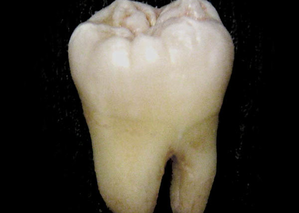 Anatomically Shaped Tooth and Periodontal Regeneration by Cell Homing