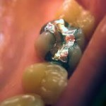 Risk aspects of dental restoratives: From amalgam to toothcolored materials