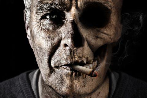 Osteoradionekroza mandibule – prikaz slucaja