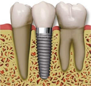 implanttt
